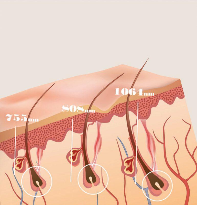 epilare definitiva laser cu 3 lungimi de unda